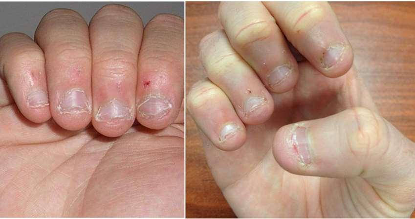 「咬指甲」真的是个坏习惯,不仅会让牙齿烂光,甚至还会因此感染「性
